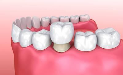 dental crown | dental bridge | wylie tx