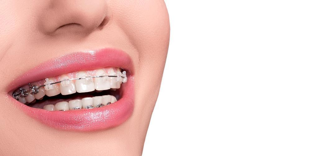 close up of woman's smile with braces l tooth extractions wylie tx