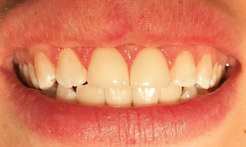 cosmetic dentistry | insmile design | wylie tx