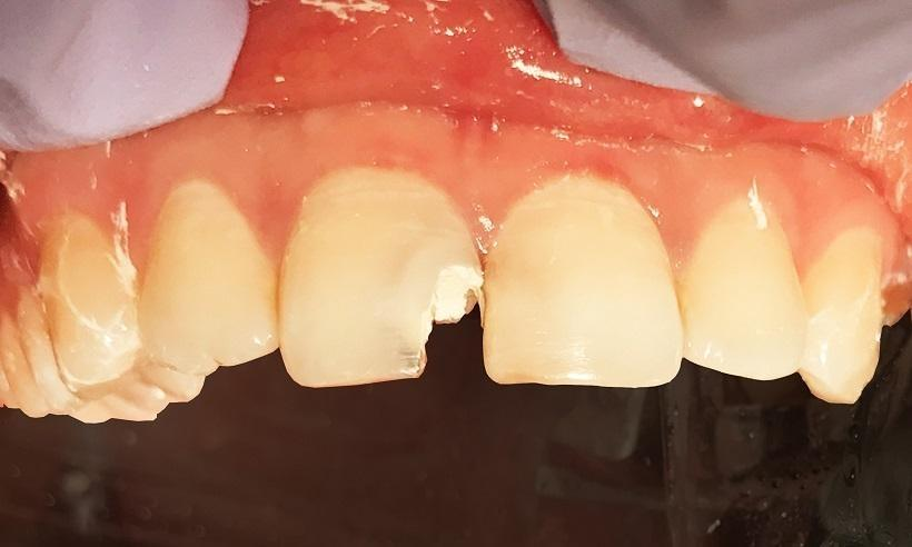 ceramic crowns | dentist 75098