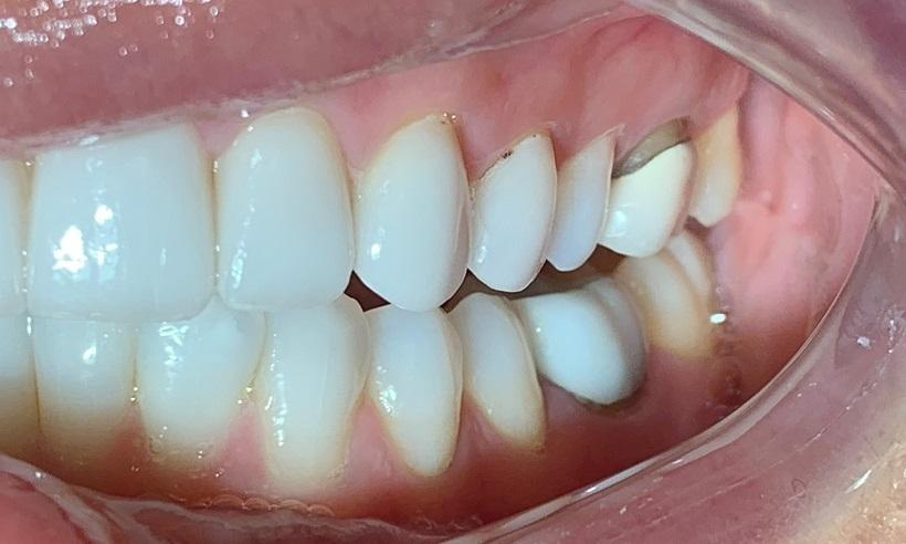 dental crowns in wylie tx | insmile design