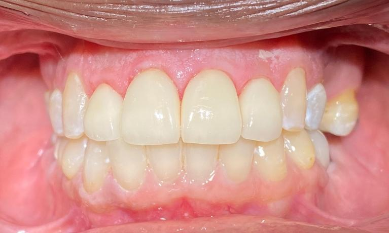 Cosmetic-Crowns-and-Fillings-After-Image
