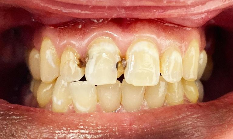 Cosmetic-Crowns-and-Fillings-Before-Image