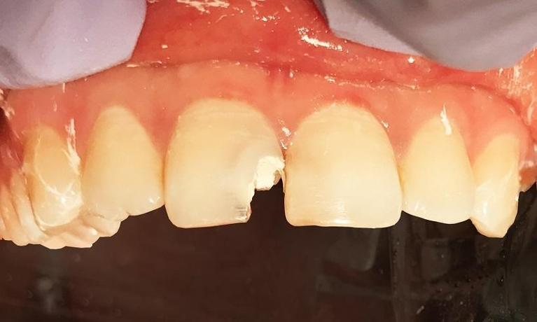 Porcelain-and-ceramic-crowns-Before-Image